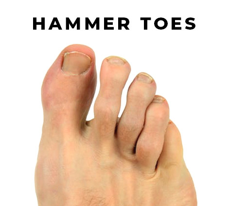 Hammer Toes
